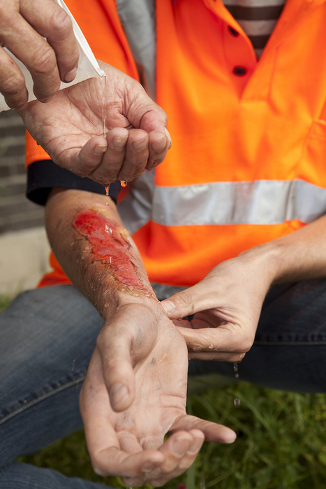 Workers' Compensation Disability